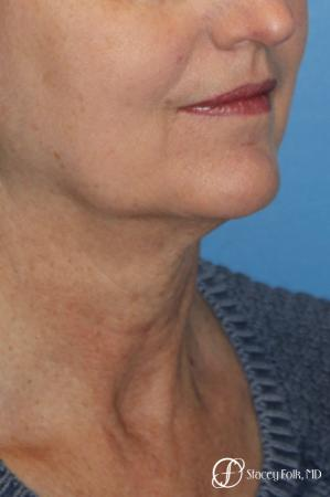 Denver Facial Rejuvenation Facelift, Blepharoplasty, Fat Transfer, Laser Resurfacing 10350 - Before and After Image 3