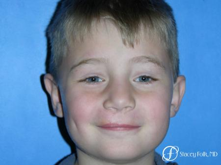Denver Cleft Lip and Palate Repair 3304 -  After Image 1