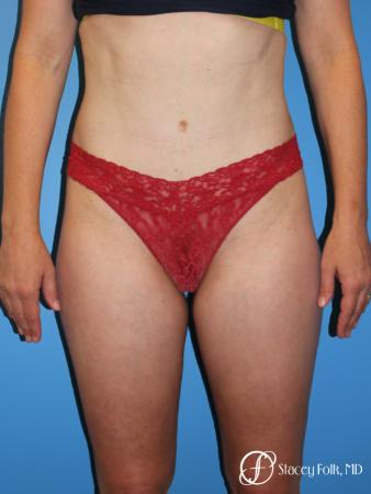Denver Tummy Tuck - Abdominoplasty 8266 -  After Image 1