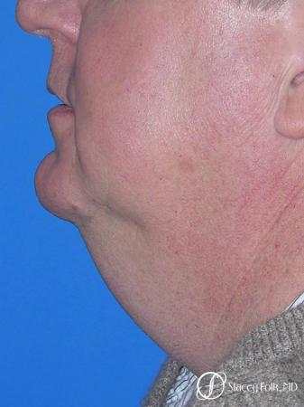 Denver Facial Rejuvenation Face lift, and Fat injections 7157 - Before Image 1