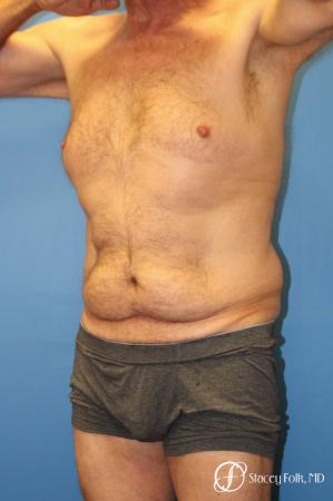 Denver Body Lift - Belt Lipectomy 8570 - Before and After Image 3