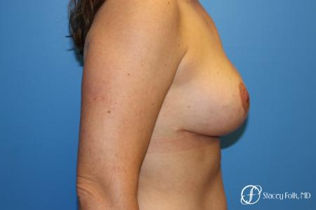Denver Breast Lift - Mastopexy 7988 -  After Image 3