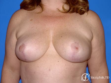 Denver Breast Reduction 54 -  After Image 1