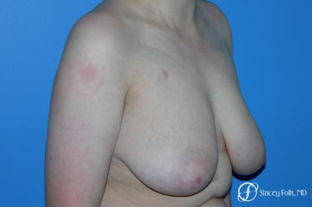 Denver Female to Male Top Surgery 5257 - Before Image 2