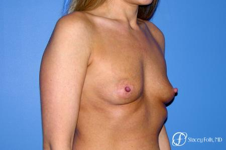 Denver Breast Augmentation 3626 - Before Image 3