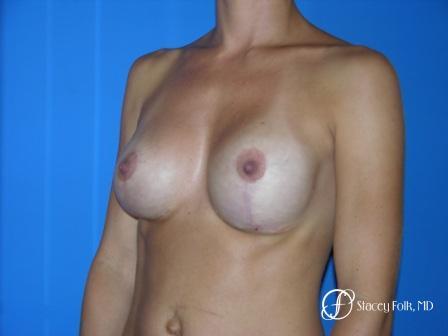 Denver Breast Revision 48 -  After Image 2
