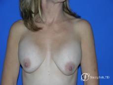 Denver Breast Revision 51 - Before Image