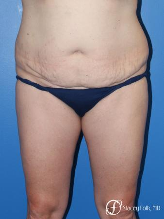 Denver Tummy Tuck (Abdominoplasty) and liposuction 10371 - Before Image 1
