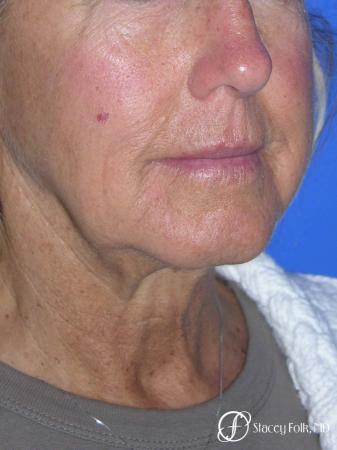 Denver Facial Rejuvenation Face Lift and Laser Resurfacing 7119 - Before Image 2