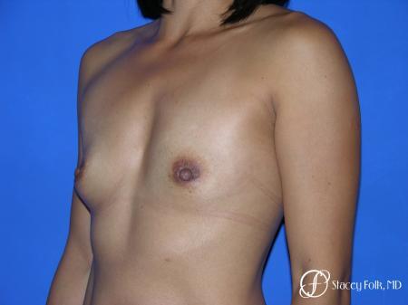 Denver Breast Augmentation 3629 - Before Image 2