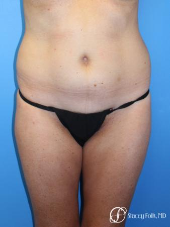 Denver Tummy Tuck - Abdominoplasty 7713 - Before Image 1