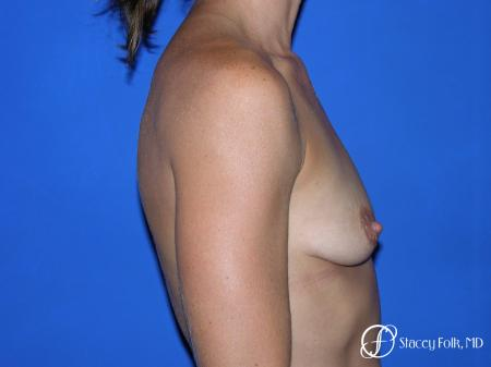 Denver Breast augmentation and breast lift (Mastopexy) 10091 - Before and After Image 5
