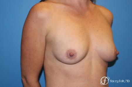 Denver Breast augmentation using Sientra textured anatomic implants 5578 - Before Image 2
