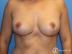 Denver Breast Lift - Mastopexy 7988 - After Image