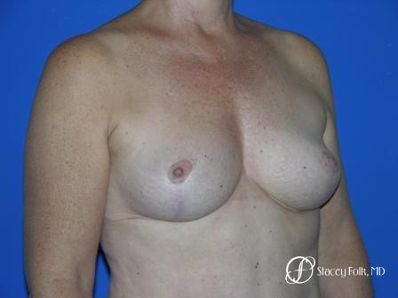 Denver Breast Reduction 36 -  After Image 2
