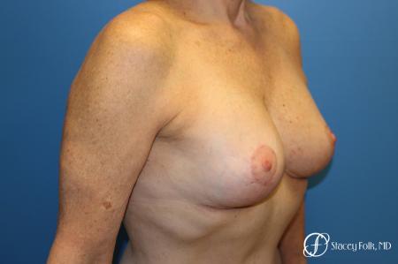 Denver Breast Revision 7990 -  After Image 2