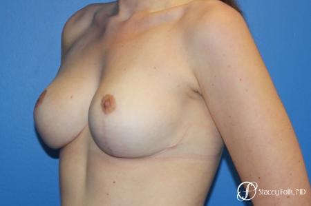 Denver Breast Lift - Mastopexy 10021 -  After Image 2