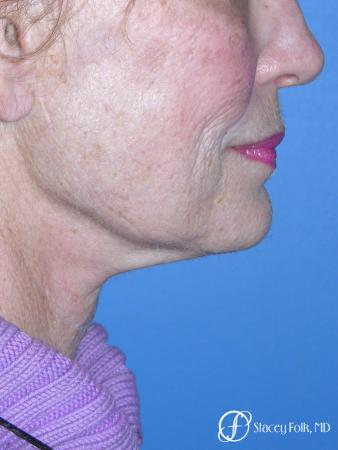 Denver Facial Rejuvenation Face Lift, Fat Injections, Laser Resurfacing 7116 - Before Image