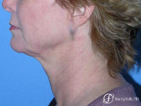 Denver Facial Rejuvenation Face Lift 7121 - Before Image 1
