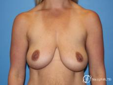 Denver Breast Lift - Mastopexy 8297 - Before Image