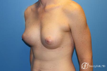 Denver Male to female top surgery with Sientra anatomic textured classic implants 5256 -  After Image 2