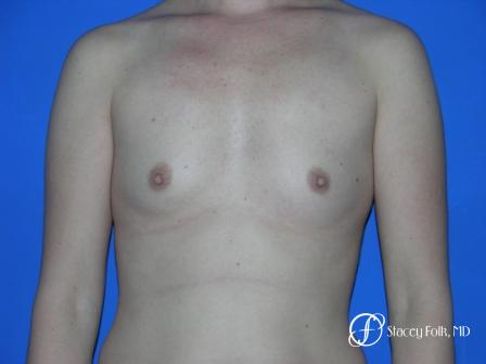 Denver Breast Augmentation 33 - Before Image 1