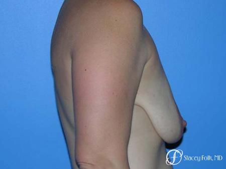 Denver Breast Lift - Mastopexy 7981 - Before and After Image 3