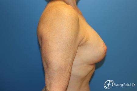 Denver Breast Revision 7990 -  After Image 4