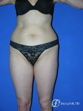 Denver Liposuction 961 - Before Image
