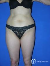 Denver Liposuction 961 - Before Image