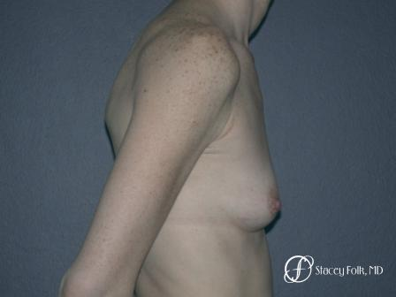 Denver Breast Augmentation 12 - Before and After Image 3