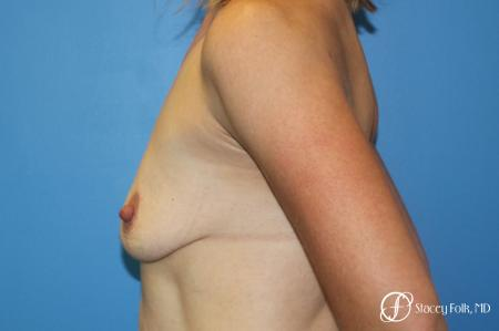 Breast Augmentation and Breast lift (Mastopexy) - Before and After Image 2