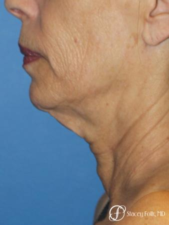 Facelift, Fat Transfer, Laser - Before Image