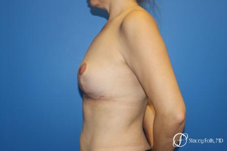 Fat Transfer Breast Lift (Mastopexy) -  After Image 3