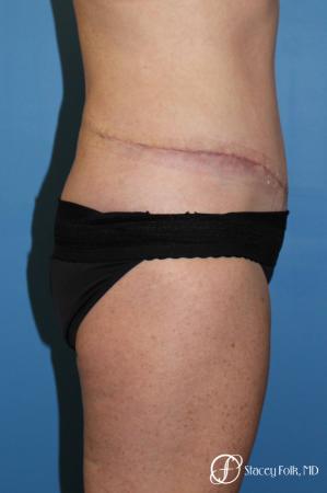Denver Tummy Tuck 4817 -  After Image 3