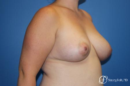 Fat Transfer To Right Breast - 1 After Image 2_2