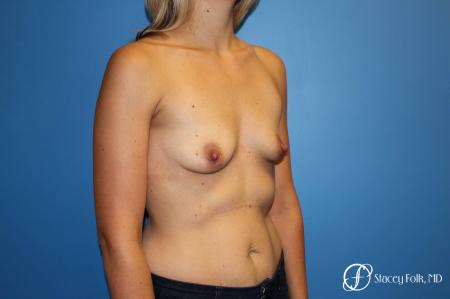 Denver Breast Augmentation 4816 - Before and After Image 3