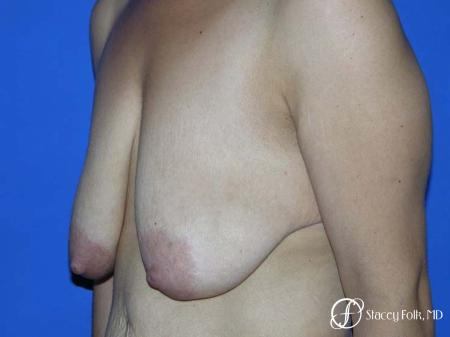 Denver Breast Lift - Mastopexy 7982 - Before Image 2