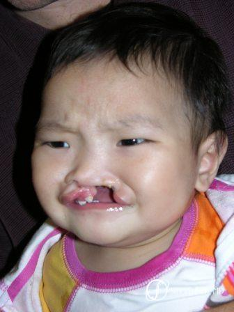 Denver Cleft Lip and Palate Repair 59 - Before Image