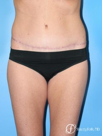 Denver Tummy Tuck - Abdominoplasty 7713 -  After Image 1