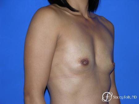 Denver Breast Augmentation 3629 - Before Image 3