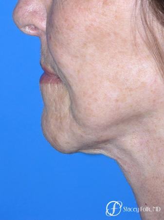 Denver Facial Rejuvenation Face Lift and Fat Injections 7129 -  After Image 1