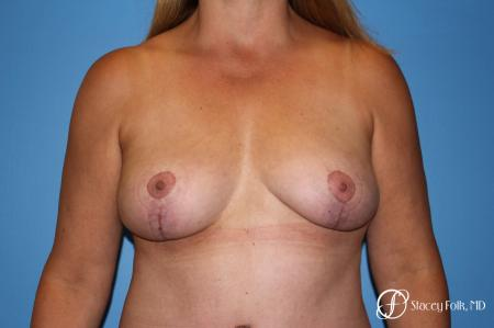 Denver Fat Transfer Breast Lift Mastopexy with Fat Transfer to the Breast 6920 - After Image