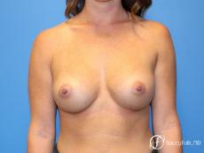 Denver Breast Augmentation using Sientra Silicone Breast Implants 9092 - After Image