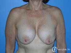 Denver Breast Revision 7990 - Before Image