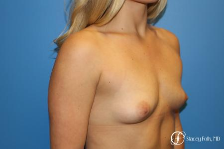 Denver Breast Augmentation with textured Sientra Anatomic Implants 9126 - Before Image 2