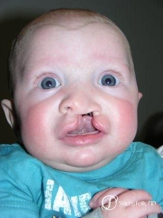 Denver Cleft Lip and Palate Repair 964 - Before Image