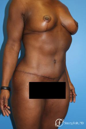 Denver Breast Lift - Mastopexy, and Tummy Tuck - Abdominoplasty 7512 -  After Image 3