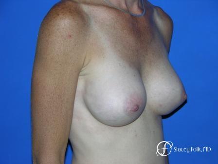 Denver Breast Augmentation 12 -  After Image 2