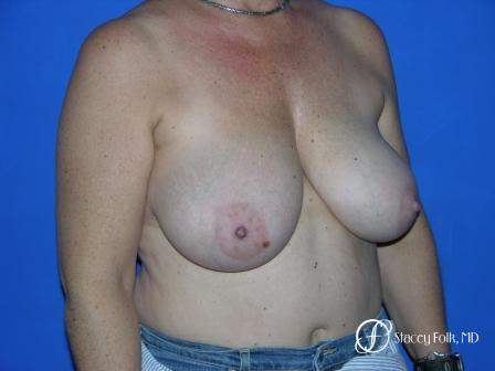 Denver Breast Reduction 36 - Before Image 2